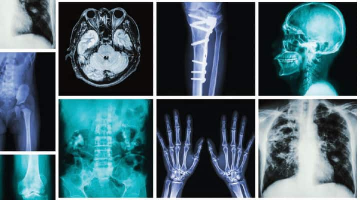 Grid of x-rays that may cause damage to DNA