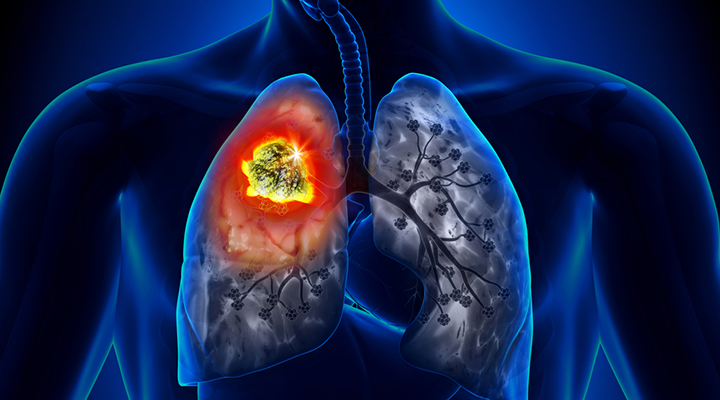 Lung Cancer Life Extension