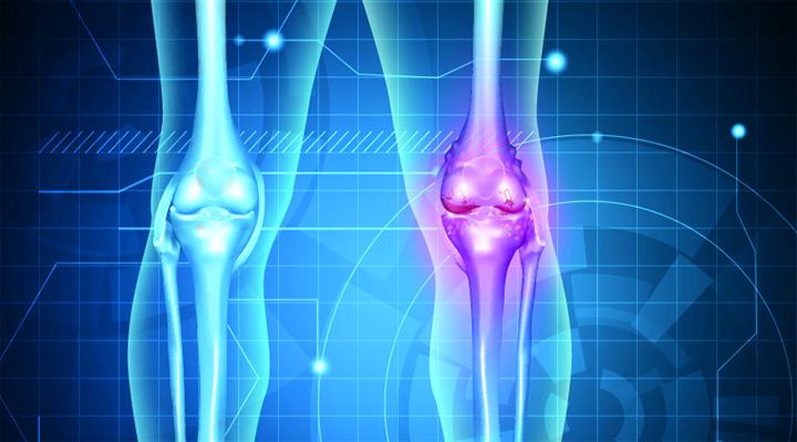 osteoarthritis life extension