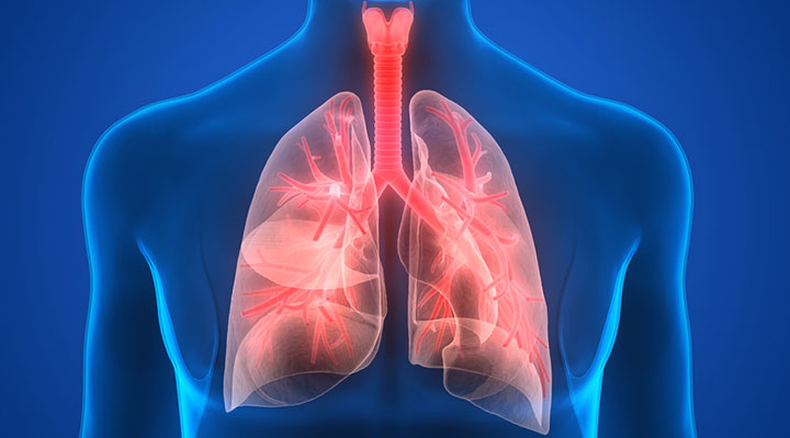 Pneumonia Overview | Life Extension