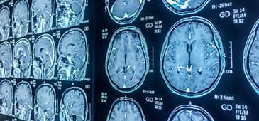 NAC could help MS patients
