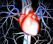 A Hidden Cause of Heart Attack and Stroke