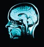 B Vitamin Supplements Slow Brain Atrophy in Cognitively Impaired Patients