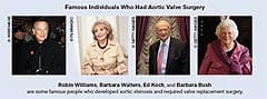 Famous Individuals Who Had Aortic Valve Surrery