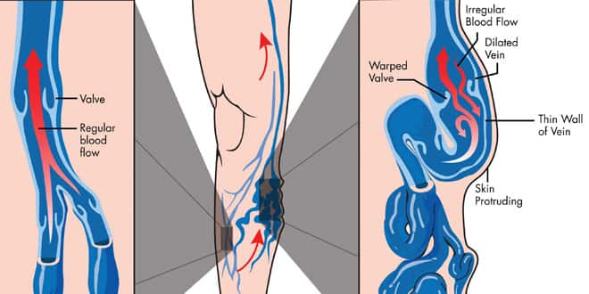 normal vein blood flow and varicose veins