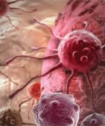 Prostate Cancer: Food For Thought