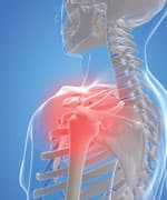 Novel Mechanism Protects Against Arthritis