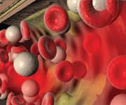 Low Testosterone Associated With Higher Vascular Risk