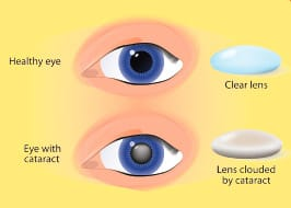Understanding Cataracts