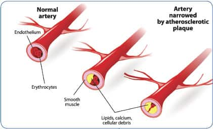 What Causes Arteries To Calcify?