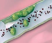 Гомоцистеина повреждает эндотелий