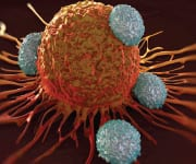 Inflammation Drives Colorectal Cancer Metastasis