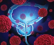 Lower Screening Rates Could Delay Early Onset Prostate Cancer Treatment