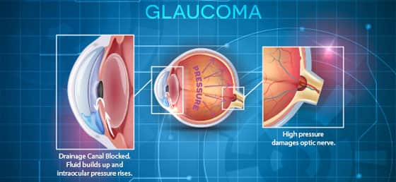 Reversing a Root Cause of Glaucoma - Life Extension