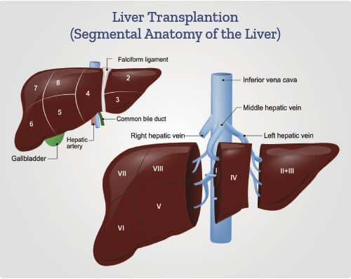 Liver Transplantation diagram