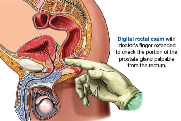 digital rectal exam