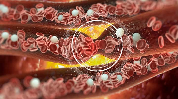 Blood Clot Prevention Overview Life Extension