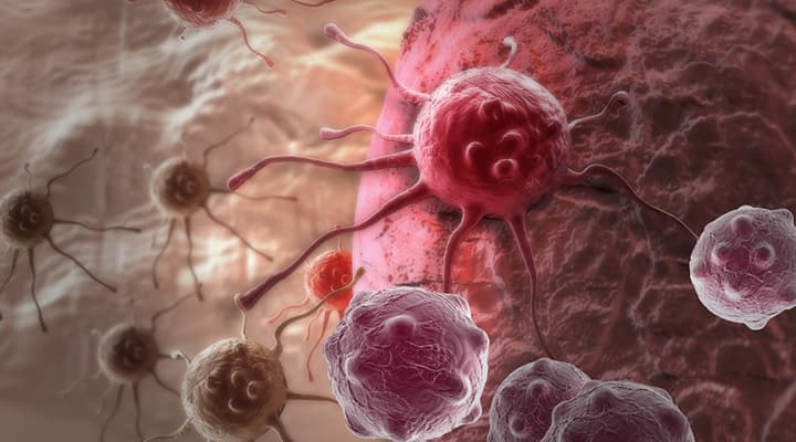 Pancreatic Cancer | Life Extension